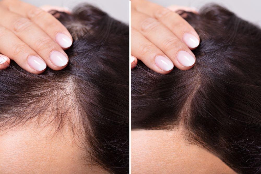 hair loss2 - ریزش مو