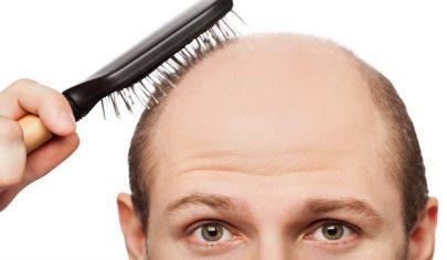 hair loss3