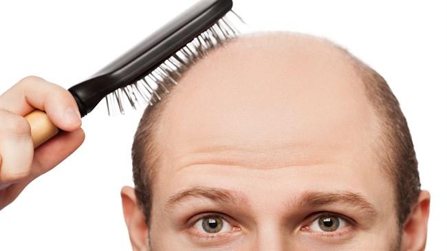 hair loss3 - ریزش مو