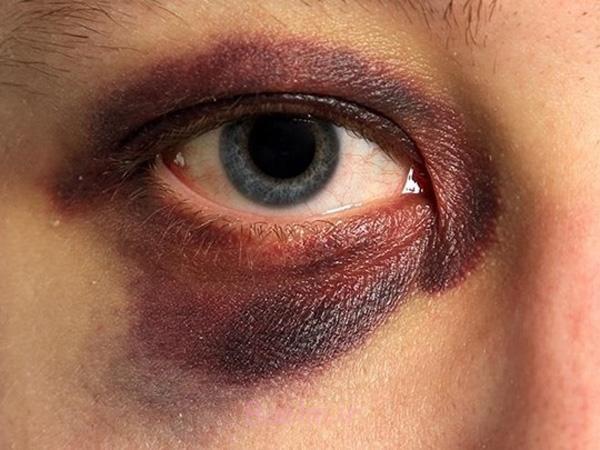 sleeping with makeup - خوابیدن با مواد آرایشی و آسیب های ناشی از آن